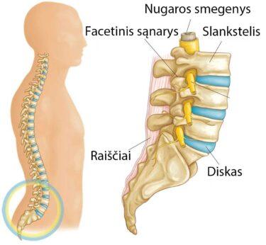 svorio kritimas ir juosmens stuburo stenozė