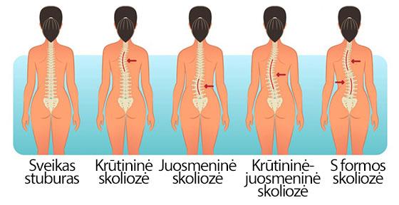 Skoliozė - iškrypusio stuburo priežastys ir gydymas | Dopaminas