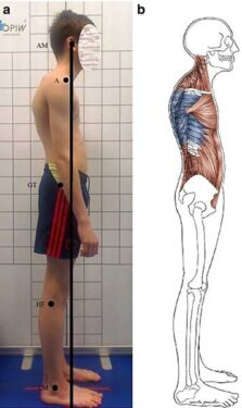 Skausmingi pečių raumenys